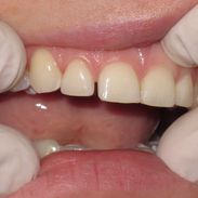 Cosmetic Dentistry 6