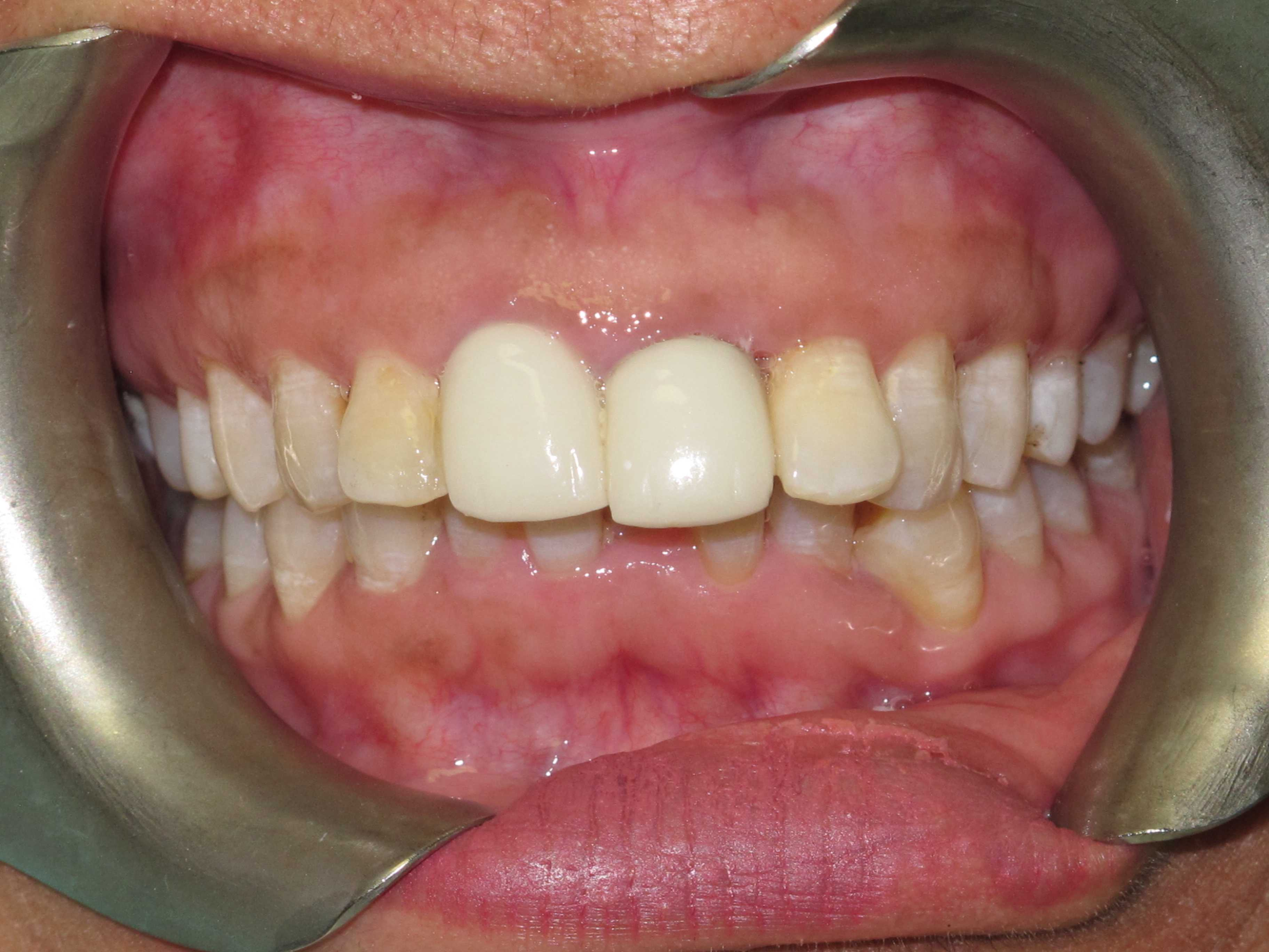 Cosmetic Dentistry 2