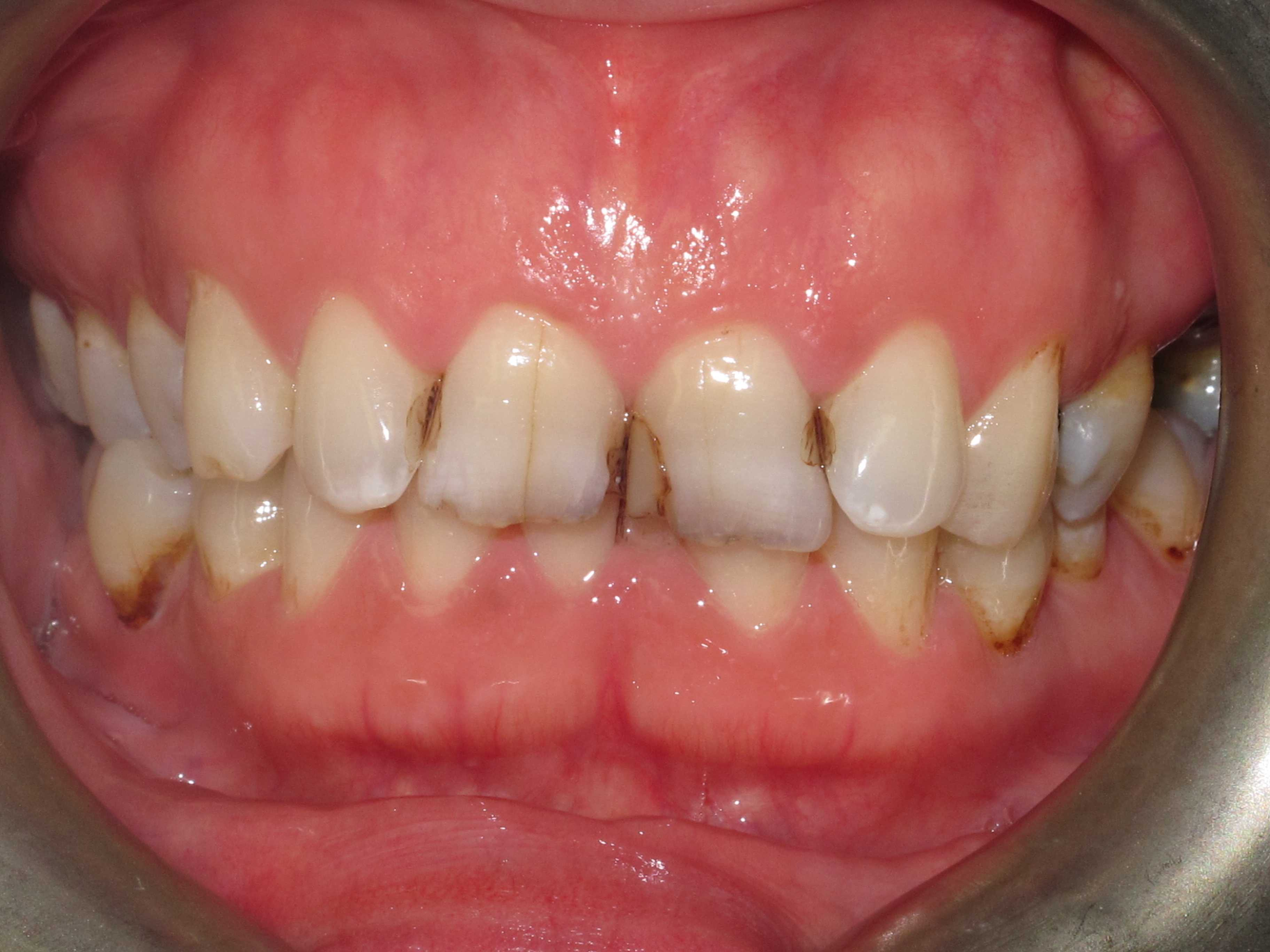 Cosmetic Dentistry 4
